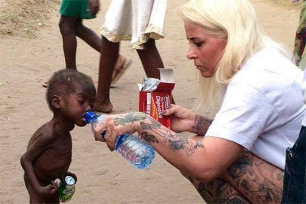 Conoce la historia de 'Hope', el niño desnutrido rescatado de África